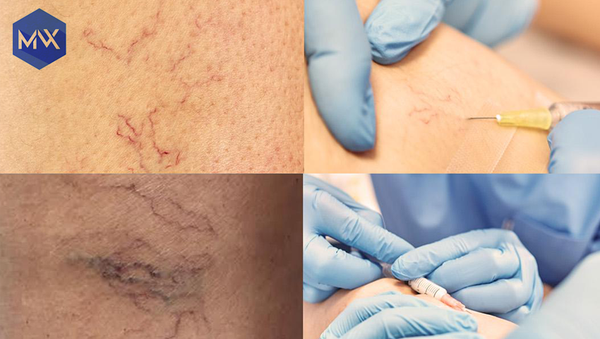 Scleroterapie Med Varix