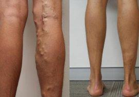 reabilitarea după operație pentru a elimina varicoza)